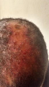 My head after medical attention given, some blood residue but no sign of injury